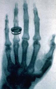 Una de las primeras radiografías realizadas por Wilhelm Röntgen correspondiente a la mano izquierda de  Albert von Kölliker